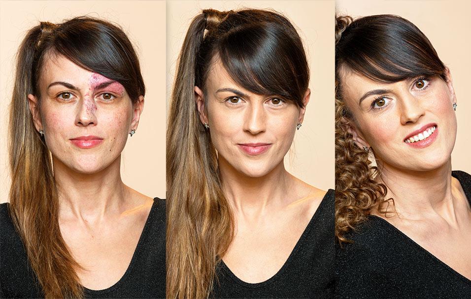 Mihaelina transformacija uz Dermablend
